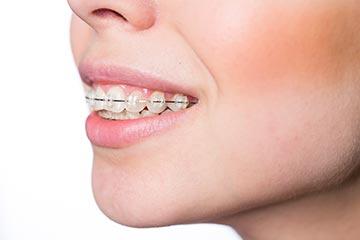 Fox Kids Dentistry and Orthodontics - Braces