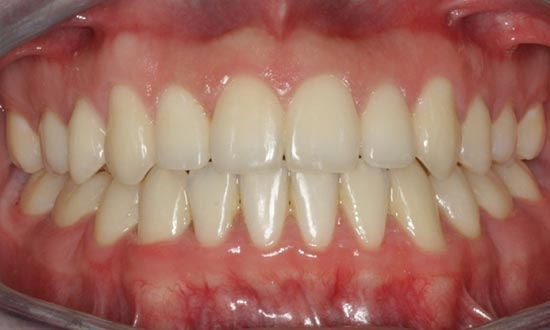 Fox Kids Dentistry and Orthodontics - Braces After