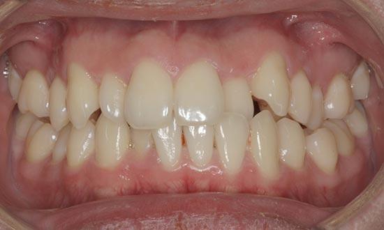 Fox Kids Dentistry and Orthodontics - Braces Before