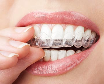 Fox Dentistry and Orthodontics - Invisalign & Invisalign Teen