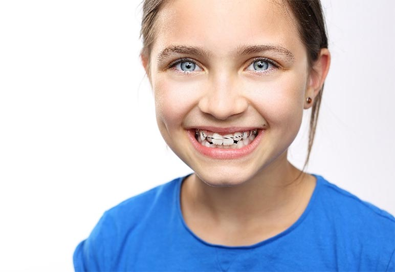 When is the Right Time for an Orthodontic Consultation?